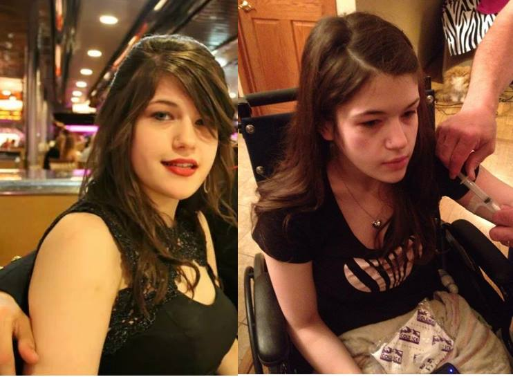 Morgan before:after