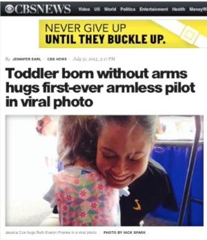 Jessica Cox Armless Hug!